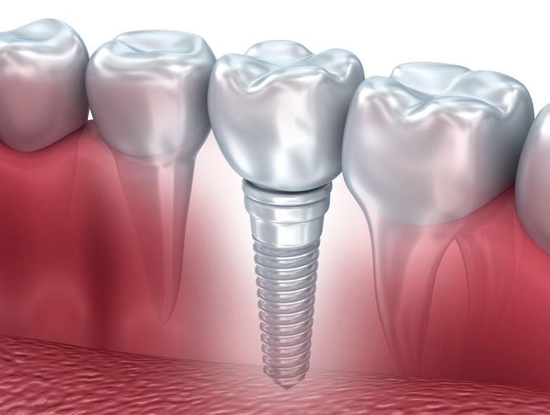 dental implants RI
