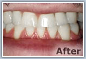 Dental implants after photo
