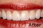 After laser dentistry at Dr. Dave Ward Cosmetic Dentist