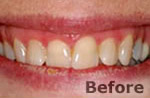 Before laser dentistry at Dr. Dave Ward Cosmetic Dentist