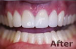 After porcelain veneers at Dr. Dave Ward Cosmetic Dentist