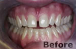 Before porcelain veneers at Dr. Dave Ward Cosmetic Dentist