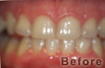 Before Zoom Whitening at Dr. Dave Ward Cosmetic Dentist